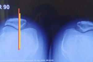 这位姑娘的膝关节前方痛苦为什么总也好不了——髌骨外侧过度揉捏综合症