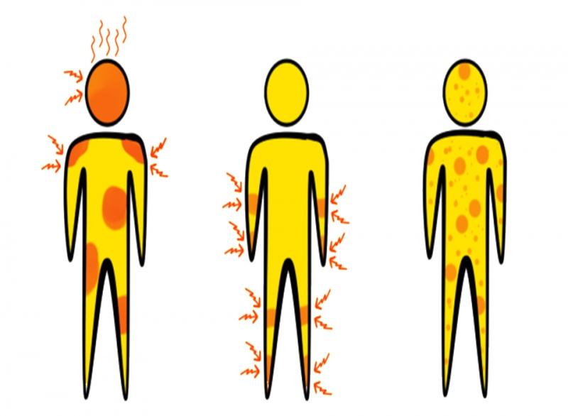 重症肌无力危象有什么症状呢健康生活须知
